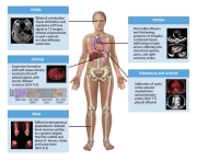 Cardiooncology-6
