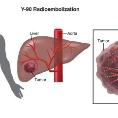 Interventional-Radiology-3