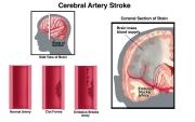 Hultman-stroke